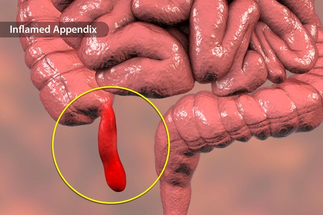 Aanhangsel - Appendisitis-thenaturalhealthdiction.com/wp-content/uploads/2019/05/Appendix-Appendicitis-.jpg