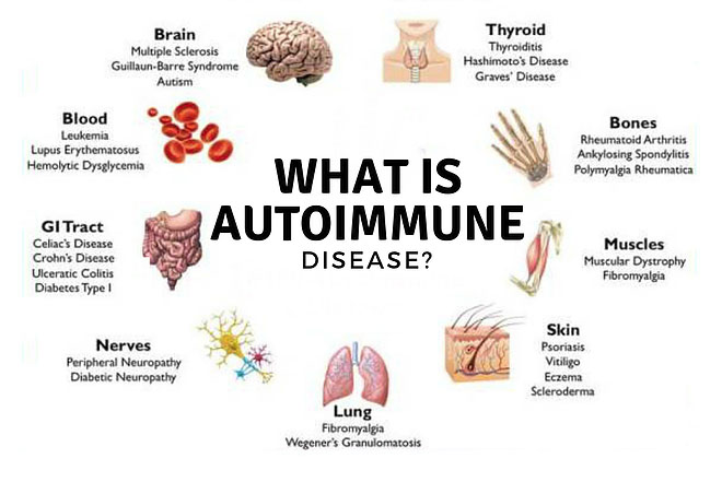 自身免疫性疾病-thenaturalhealthdictionary.com/wp-content/uploads/2019/05/Autoimmune-Disease-.jpg