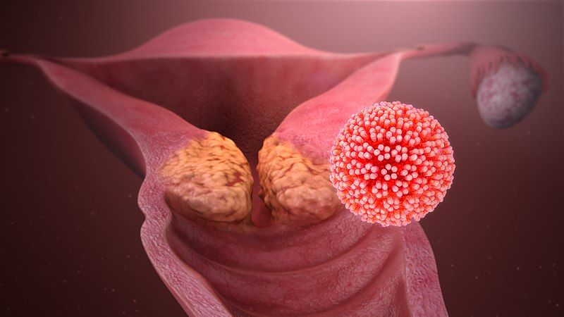 what is human papilloma virus - the natural health dictionary - thenaturalhealthdictionary.com - Photo by Manu 5 - 800px-HPV_causing_cervical_cancer