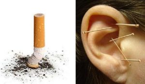 Acupuncture Stop Smoking