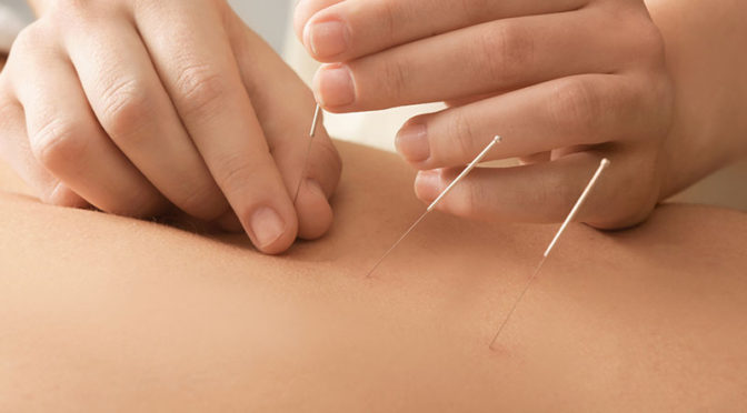 Acupuncture-fertilityhttps: //thenaturalhealthdictionary.com/wp-paub/uploads/2019/11/Acupuncture-fertility.jpg