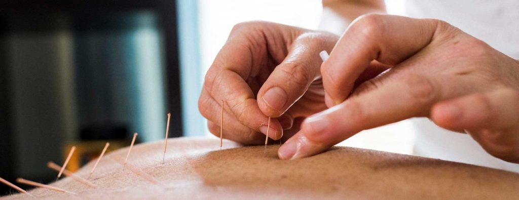 Лячэнне іглаўколваннемhttps: //thenaturalhealthdictionary.com/wp-content/uploads/2019/11/Acupuncture-hero.jpg