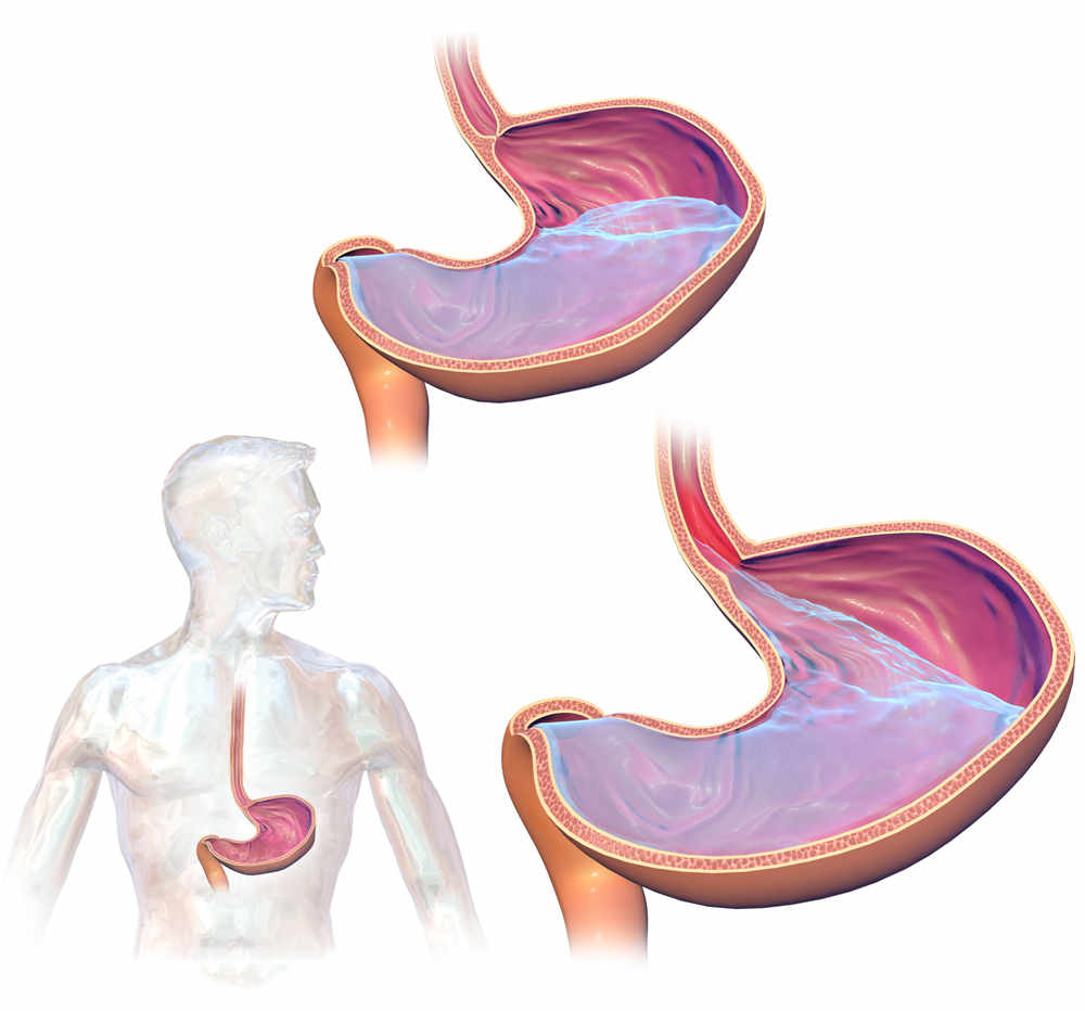 Acid Reflux And Throat Cancer 1