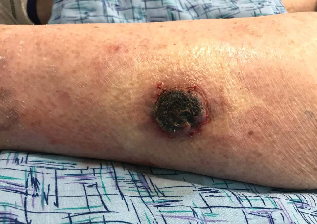 Skin Cancer Coming To A Face Near You -thenaturalhealthdictionary.com/wp-content/uploads/2019/12/Skin-Cancer-Coming-To-A-Face-Near-You-.jpg