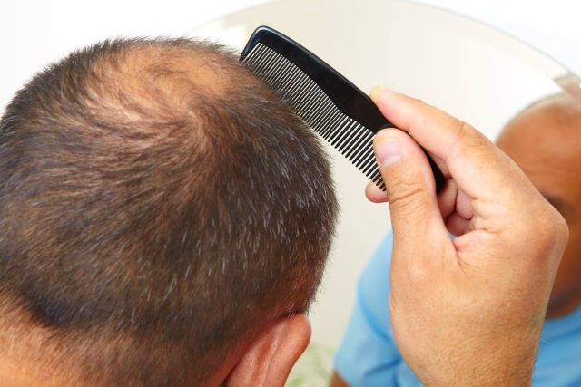 Treating Hair Loss The N H Dictionary - thenaturalhealthdictionary.com