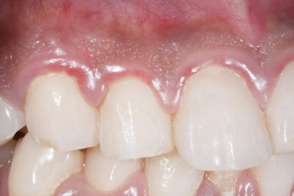 Swollen Gums And Teeth Gaps-The N H Dictionary-thenaturalhealthdictionary.com
