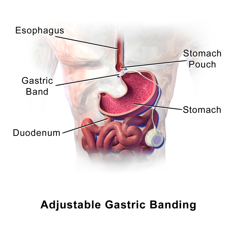Gastric Surgery Hypnosishttps://thenaturalhealthdictionary.com/wp-content/uploads/2020/03/Gastric-Surgery-Hypnosis-.png