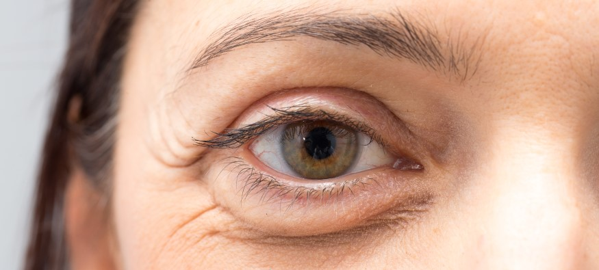 eye bags - thenaturalhealthdictionary.com