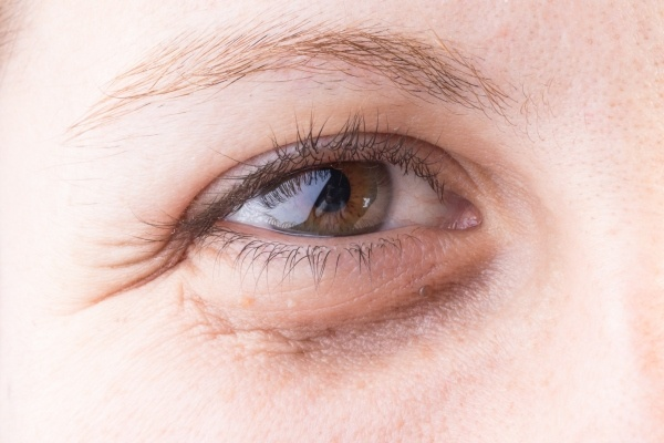 puffy eyes - thenaturalhealthdictionary.com