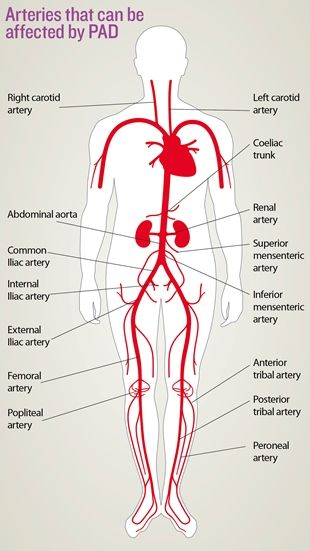 Artery Disease - Natural Cures-thenaturalhealthdictionary.com/wp-content/uploads/2020/06/Artery-Disease-Natural-Cures.jpg